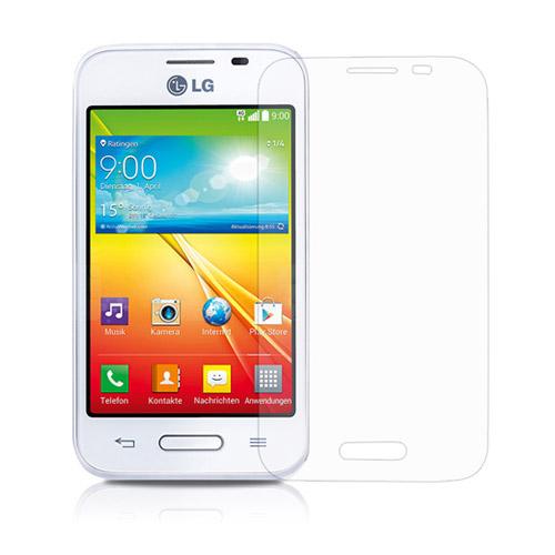 Displayskydd till LG L40